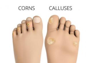 painful hard skin on toe